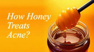 Fightning Acne with Honey