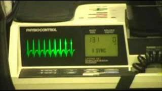 Supraventricular Tachycardia - What Is It and How Is It Treated?