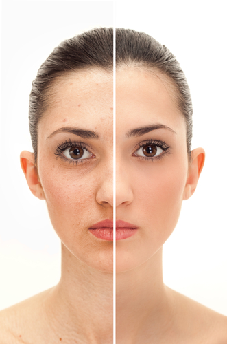 Get Rid Of Uneven Toned Skin!