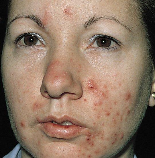 Severe-acne