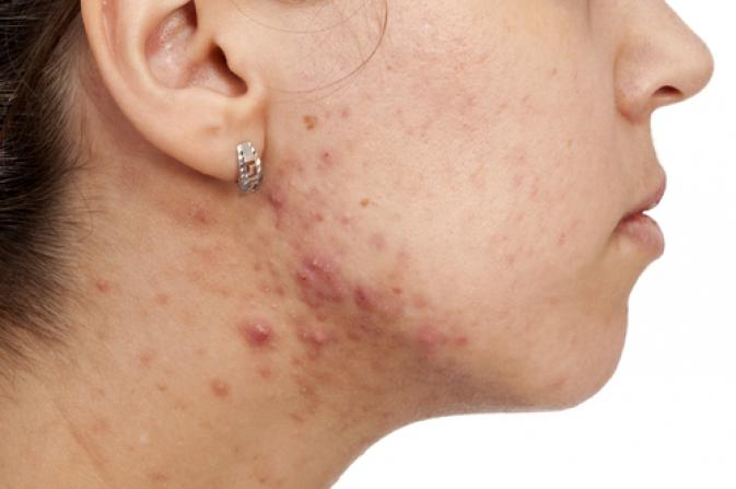 adult-acne