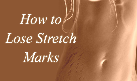 how-to-lose-stretch-marks