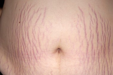 pink-stretch-marks