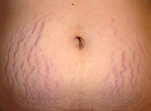 purple-stretch-marks