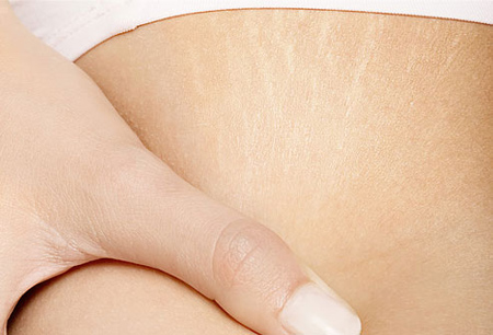 remedies-for-stretch-marks
