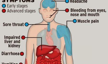 ebola_symptoms