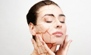 How to take care of dry skin in winter?